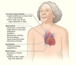 Major signs and symptoms of coronary heart disease